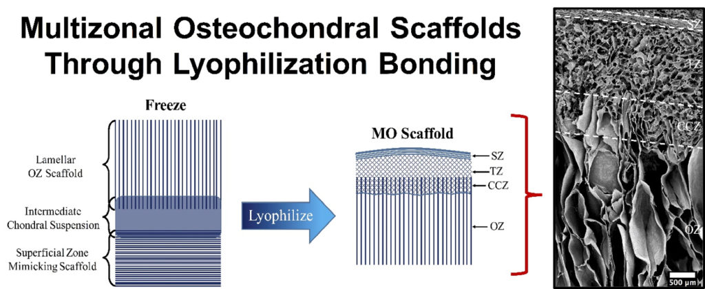 Side-by-side depiction of freeze-casting process of multi-zonal scaffolds with SEM image of its specific zonal architecture. (Image  credits to Drew Clearfield)